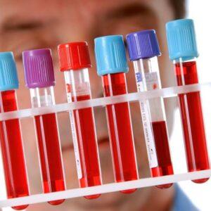 Диагностика <br />аллергостатуса